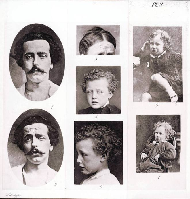 plate_depicting_emotions_of_grief_from_charles_darwins_book_the_expression_of_the_emotions